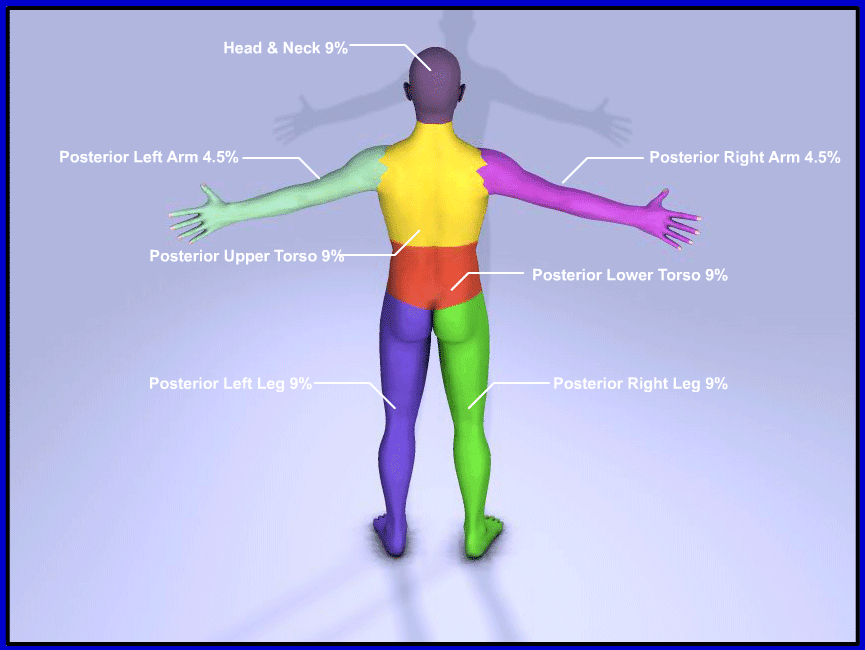 Posterior view of body to illustrate the Rule of 9's