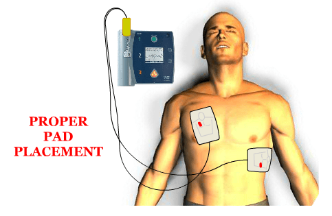 Place pads on victim's bare chest. Turn on the AED, let the AED analyze the victim's pulse. Perform CPR if necessary.